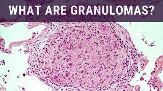 What are Granulomas? - Pathology mini tutorial