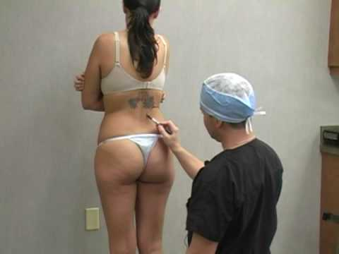 Liposuction in Phoenix with Dr. William Hall Kelli Documentary