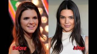 Kendall Jenner Plastic Surgery Before and After