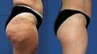 Comment Eliminer la Cellulite Définitivement - Anti cellulite