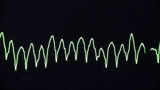 Cardiac Arrest Rhythms, VF, VT, Asystolie And PEA