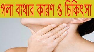 গলা ব্যথার কারণ ও চিকিৎসা||Gola Batha Rodher Upai||গলা ব্যথা হলে করণীয়