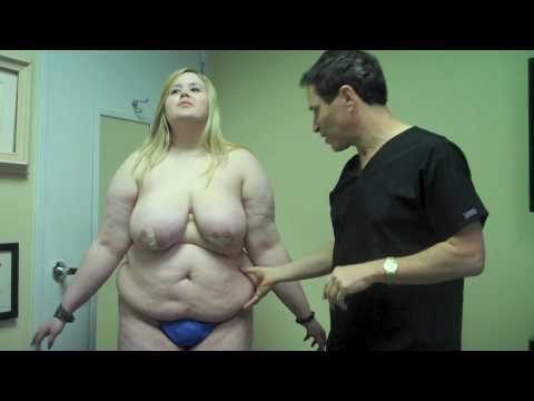 Kelly plans breast liposuction by Steven Burres md