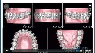 Six Month Smiles- https://www.straightsmilesolutions.com/