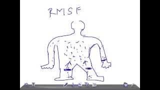 Medical Video Lecture: Rickettsia rickettsii, MICROBIOLOGY