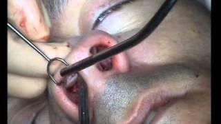 Rinoplastia - operacion nariz. Clinica Ruber Dr.Alfonso Castro Sierra.wmv