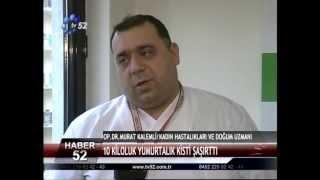 Op. Dr. Murat Kalemli ( Dev Dermoid Kist )