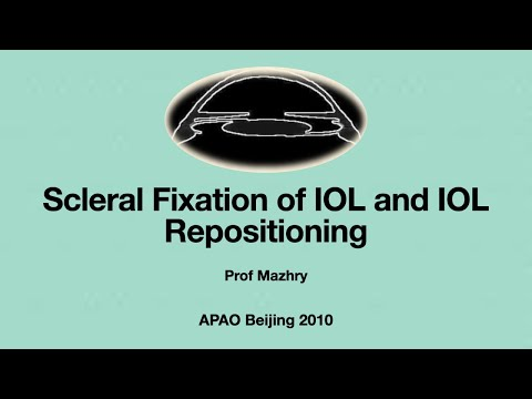Scleral Fixation of PC IOL Surgical Techniques by Dr. Mazhry APAO 2010 Beijing