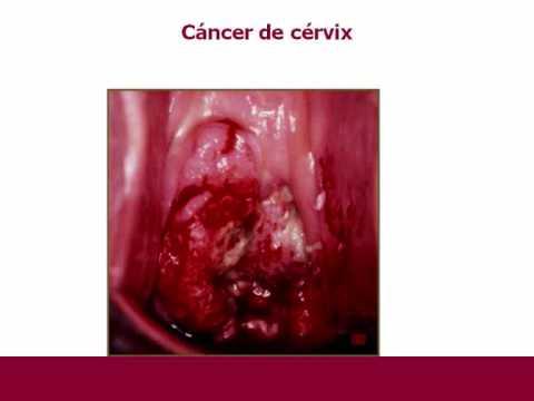 Papiloma humano virus VPH