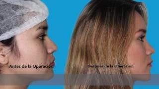 FRIDA se realizó una rinoplastía con la Dra Martínez