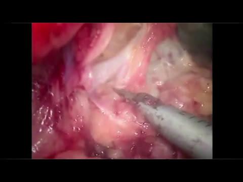 inspeccion de genitales femenino