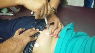 Como colocar una inyeccion en las nalgas
