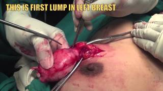 MULTIPLE ( SEVEN )  BREAST LUMPS ( FIBROADENOMAS )  OPERATED BY DR  J  K  LAKHANI