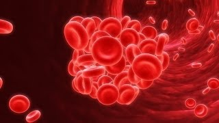 Medical Video Lectures: Quick Overview of Anemia for Medical students & Medical Board examinations