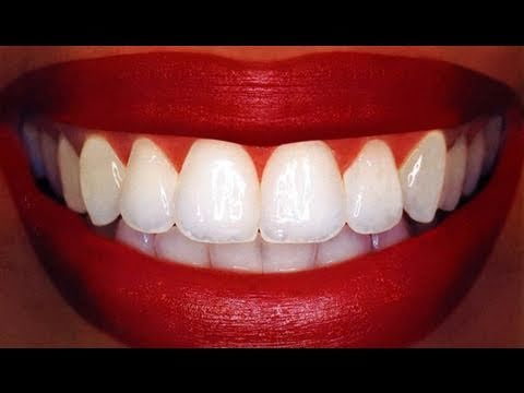 Xxx Mp4 Homemade Teeth Whitening 3gp Sex