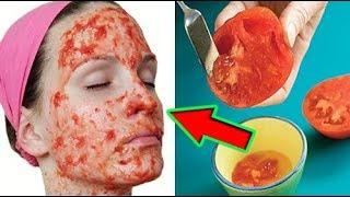 وضعت الطماطم على وجهها.. و ماحدث يجعلكم تفعلون مثلها على الفور !