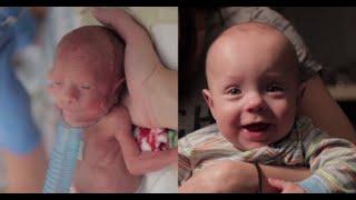わずか680gで生まれた超未熟児の『奇跡の成長ストーリー』に世界中が感動!
