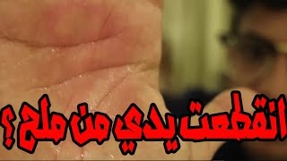 تجربة الثلج مع الملح في الجسم !! | يدي انقطعت ؟؟؟؟؟