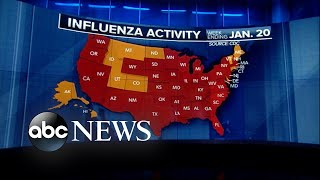 CDC reports that the flu epidemic is the worst in nearly a decade