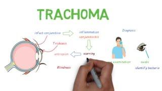 Trachoma - a devastating infectious eye disease