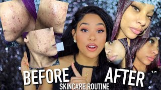 THE SKINCARE ROUTINE / PRODUCTS THAT CURED MY ACNE FOR GOOD!