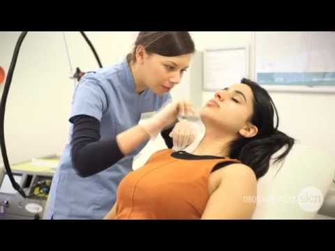 Laser Hair Removal Face Treatment   sk:n