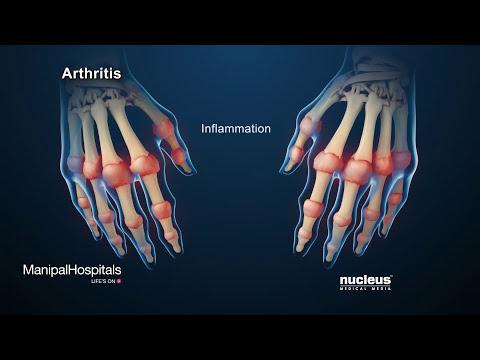 How Is Rheumatoid Arthritis Treated? - Manipal Hospitals