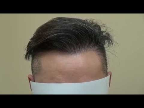 Follicular Unit Extraction Result FUE Hair Transplant Hairline Lowering Dr. Diep www.mhtaclinic.com