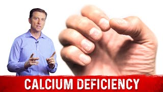 The Causes & Symptoms of a Calcium Deficiency