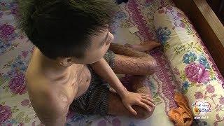 Vết thương đau đớn xé lòng về tinh thần và thể xác của em Phạm Nhật Trường