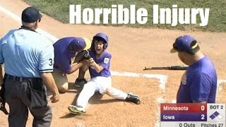 Horrible Baseball Injury. Hit in face. Paramedics called in during LLWS