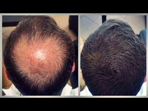 How to stop  hair loss - 100% Working   চুল পড়া রোধে সেরা সমাধান - ১০০% কার্যকরী