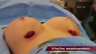 Breast Implant Insertion - Dr. Feng Chong - Plastic Surgery Alberta