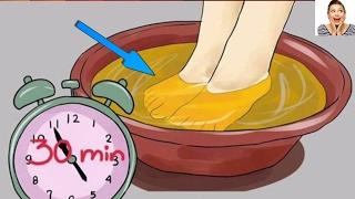 Voici ce qui arrive si vous plonger vos pieds en vinaigre de cidre une fois par semaine pendant nuit