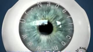 اصلاح همزمان آستیگماتیسم با عمل آب مروارید - مرکز چشم پزشکی دکتر علیرضا نادری
