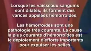 Hémorroides, Notions générales, Version en arabe-البواسير معلومات عامة