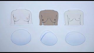 POLYTECH - ¿Qué tipos de implantes mamarios existen?