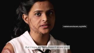 #SkillsNotScars: Sapna's Video CV