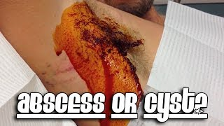 Abscess or Cyst? Part 1