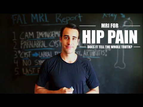 MRI FOR FAI HIP PAIN (does it tell the whole truth?)