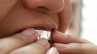 ماذا يحدث عند تغطية أسنانك بورق الألمنيوم لمدة ساعة ؟