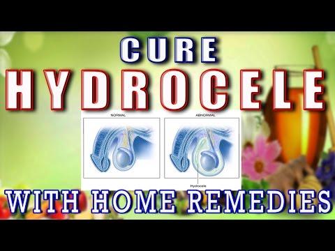 Home Remedies for Hydrocele II जलवृषण का घरेलू उपचार II