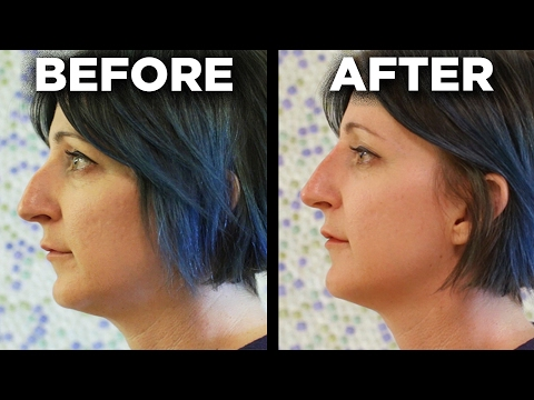People Get The 5 Minute Nose Job