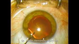 Cirugía de catarata mediante facoemulsificación