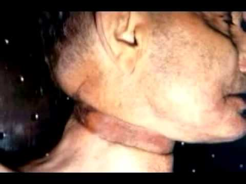 Suposta Foto de Robin Williams Morto no Necrotério