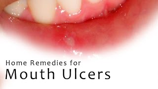 7 Amazing Remedies to Cure Mouth Ulcers - Treat Canker Sores Overnight