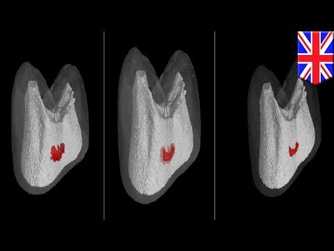 Self-healing teeth? UK scientists develop new pain-free cavity treatment