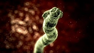 Deadly Roundworm - Monsters Inside Me Ep6