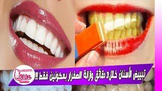 ضع هده الحبات في فمك 3 دقائق فقط ولن تصدق ستبيض أسنانك وتزيل الإصفرار والسواد..مجربة وفعالة 100%