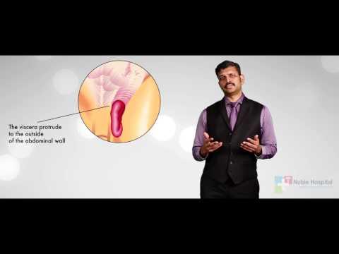 Hernia Treatment by Dr.Balaji Ravilla, Noble Hospital